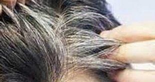درمان سفیدی مو در طب اسلامی