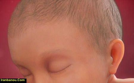 سفید شدن پوست جنین