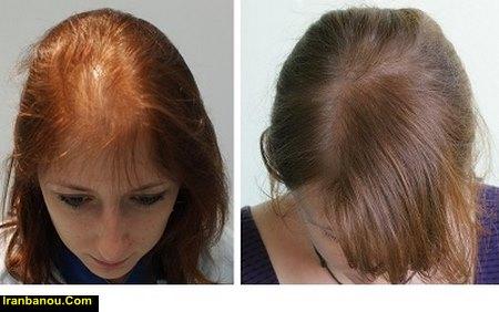 ریزش مو پس از بارداری