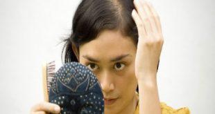 ریزش مو در سه ماهه اول بارداری
