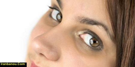 درمان سیاهی دور چشم دکتر روازاده