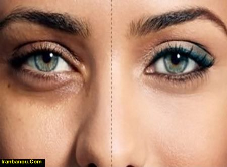 درمان گودی دور چشم