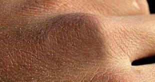 درمان خشکی پوست دست