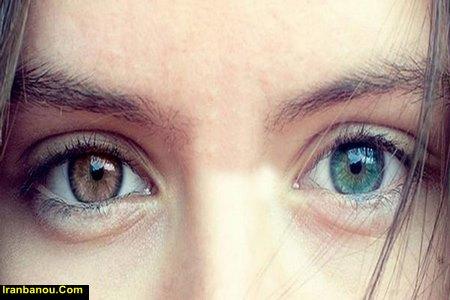 چگونه بچه چشم رنگی داشته باشیم