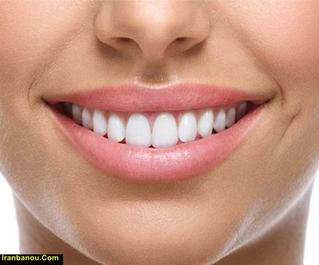 سفید کردن دندان به روش سنتی